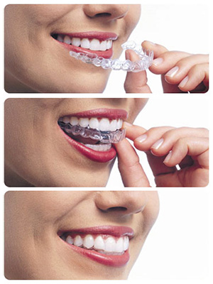 //www.molinarismilelife.it/wp-content/uploads/2016/04/Invisalign-Trays.jpg