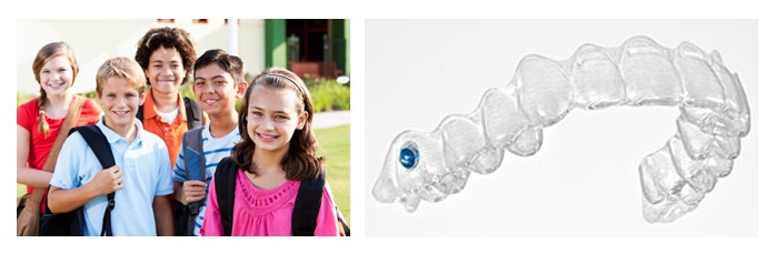 //www.molinarismilelife.it/wp-content/uploads/2016/04/invisalign-teen.jpg