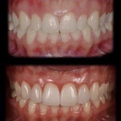 Faccette Dentali Estetiche   Dott.ssa Camilla Molinari
